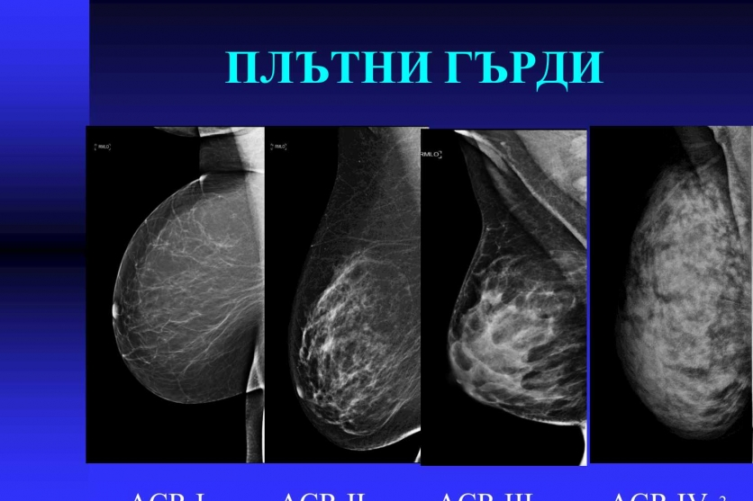 Плътните гърди - висок риск за развитие на карцином. 32
