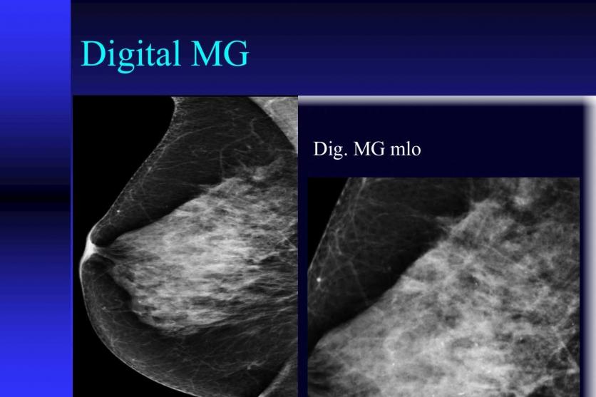 Плътните гърди - висок риск за развитие на карцином. 41