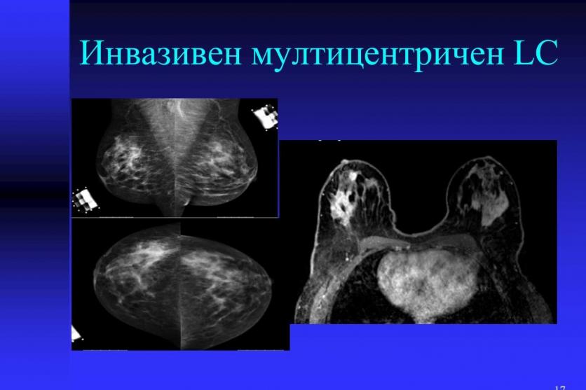 Плътните гърди - висок риск за развитие на карцином. 47