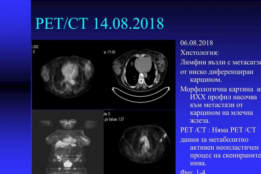 Плътните гърди - висок риск за развитие на карцином. 51